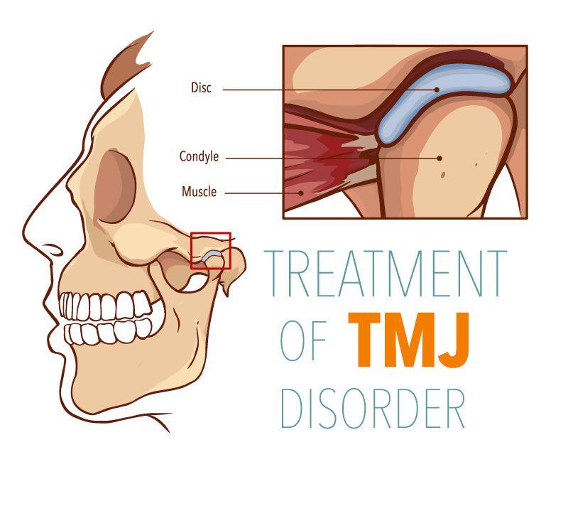 Treat TMJ Disorder